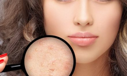 Best Foundation for Acne Scars: Makeup for Scarred Skin and Blemishes in 2021